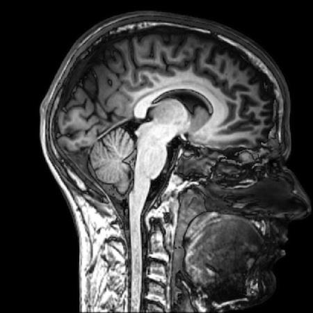 brain copy 2
